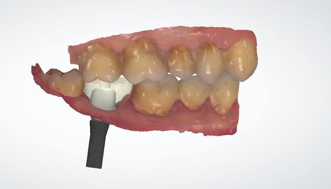 植牙副作用有哪些?如何避免副作用的風險?